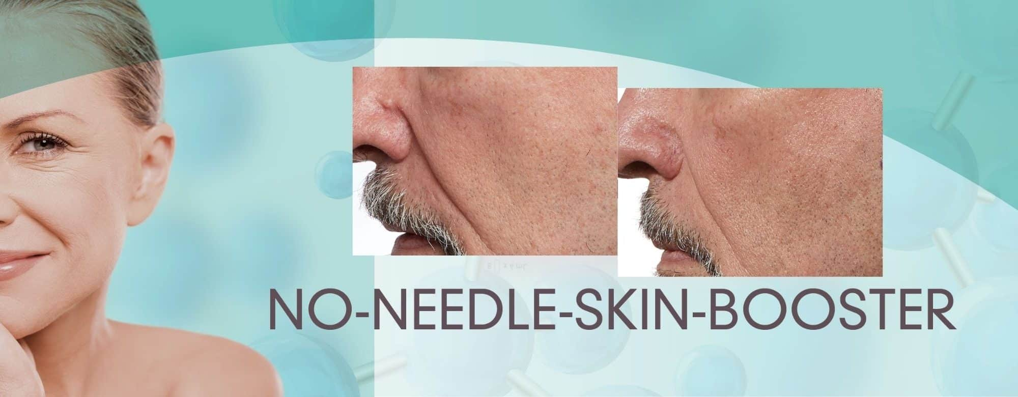 no needle skin booster